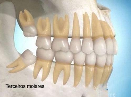 Cirurgias para Siso no Jardim Milena - Centro Odontológico
