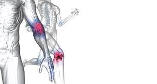 Clínica de Ortopedia na Bairro Casa Branca - Clínica Ortopédica