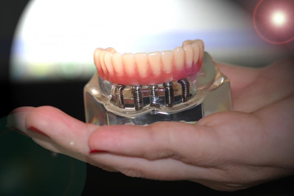 Estética Odontológica no Jardim Utinga - Centro Odontológico