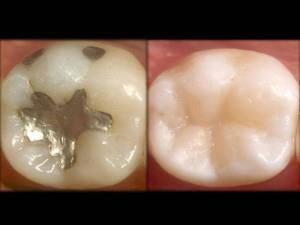 Onde Encontrar Tratamento Odontológico na Pinheirinho - Clínica de Odontologia