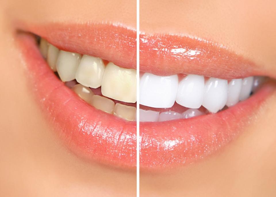 Preço Tratamento Odontológico na Vila Vitória - Clínica de Odontologia