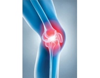 onde encontrar ortopedista especialista em joelho no Jardim Telles de Menezes
