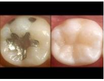 onde encontrar tratamento odontológico na Vila América