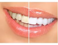 preço tratamento odontológico Tamanduateí 3
