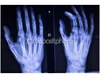 quanto custa ortopedia de mão no Parque Oratório
