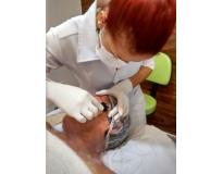 tratamento estético facial sp na Vila Gilda