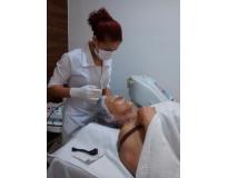 tratamentos estéticos para acne na Vila Guiomar