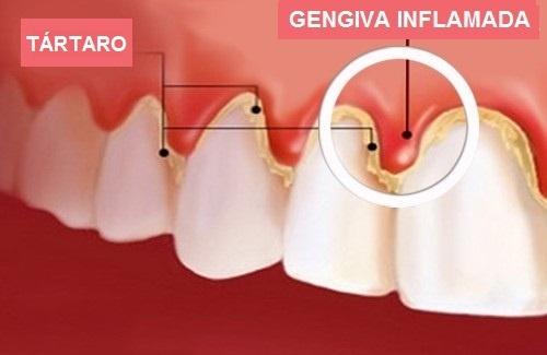 Tratamentos de Raspagem nos Dentes na Vila Pires - Clínica de Odontologia
